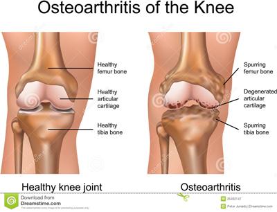 sakit-sendi-lutut