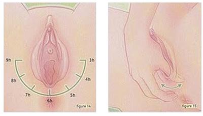 urutan-perineum